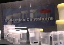 urine-samples-040416G300